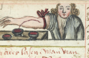illustration of bloodletting
