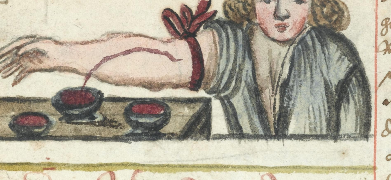 illustration of bloodletting